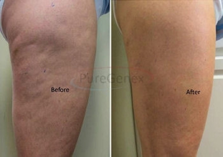 how to get smooth legs without cellulite